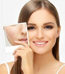 Detoxify skin