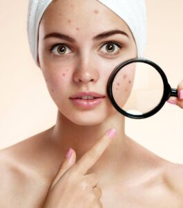 Get ride of pimples