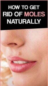 Remove mole naturally