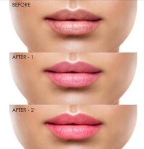 lips become puller and pink