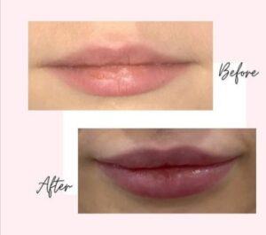 Puller lips